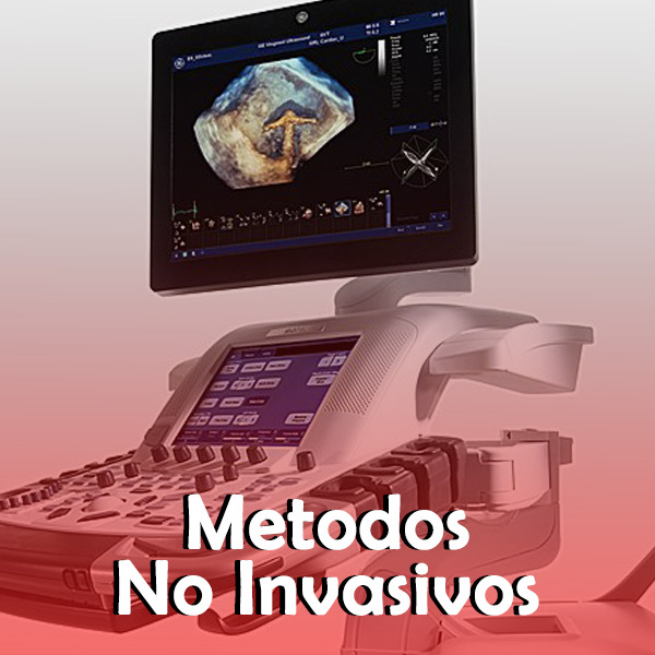 Metodos Diagnosticos No invasivos